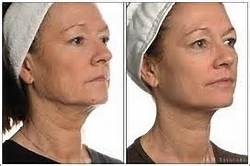 Join. latest in facial sculpturing remarkable