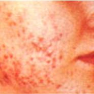 acne-small